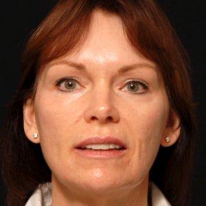 facial rejuvenation portrait procedure - after