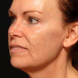 facial rejuvenation portrait procedure - before