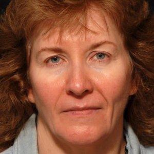 facial rejuvenation portrait procedure - before photo