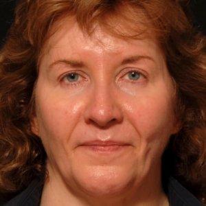 facial rejuvenation portrait procedure - after photo