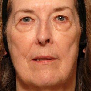 Female facial rejuvenation - before photo