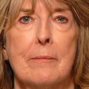 Female facial rejuvenation - after photo