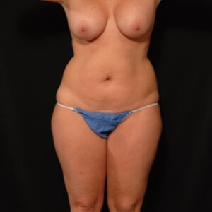 laser liposuction front torso outer thighs - before