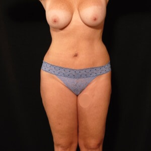 laser liposuction front torso outer thighs - after