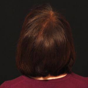 BIOCELLULAR HAIR RESTORATION