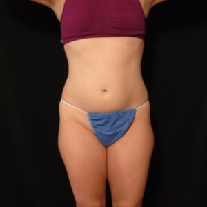female laser liposuction outer thighs - before