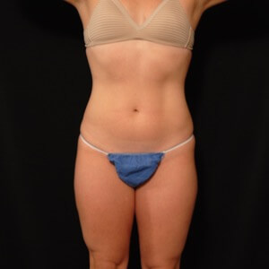 female laser liposuction outer thighs - after