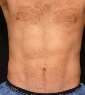 Male front torso - laser liposuction - after photo