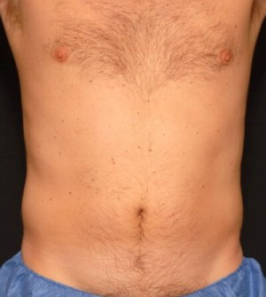 Male front torso - laser liposuction - before photo
