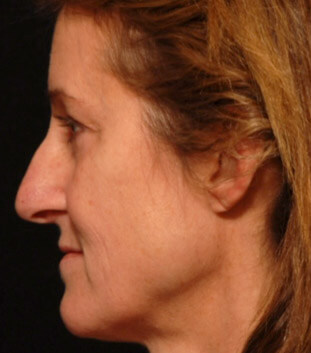 Facial rejuvenation - before photo