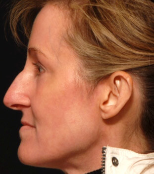 facial rejuvenation portrait procedure after