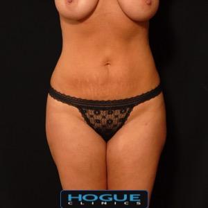 FEMALE FRONT TORSO (ABDOMEN)