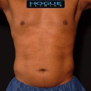 laser liposuction front torso abdomen - before
