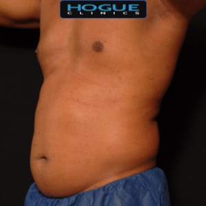 laser liposuction front torso abdomen - before