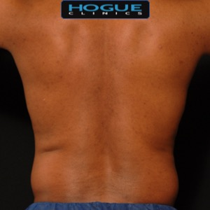 laser liposuction results at HOGUE CLINICS