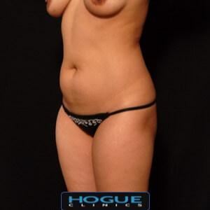 female laser liposuction front torso abdomen - before