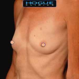female fat grafting breasts - before photo