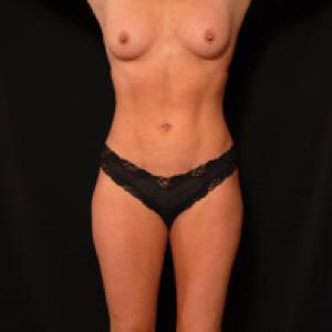 Female front torso laser liposuction after photo
