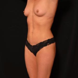 laser liposuction front torso - after photo