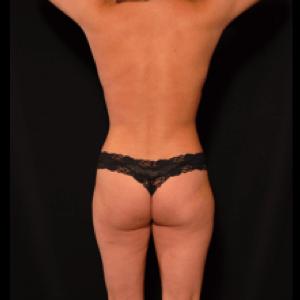 laser liposuction back torso - after photo