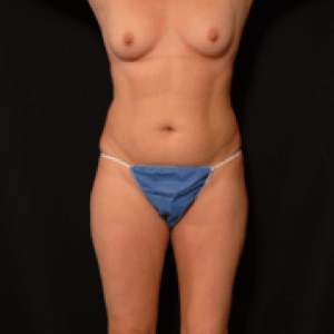 laser liposuction front torso - before photo