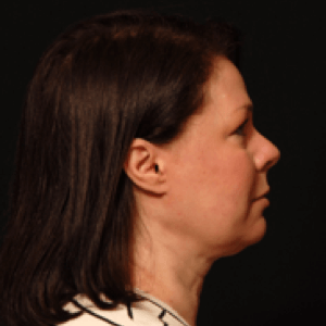 laser liposuction lower face under chin neck - after