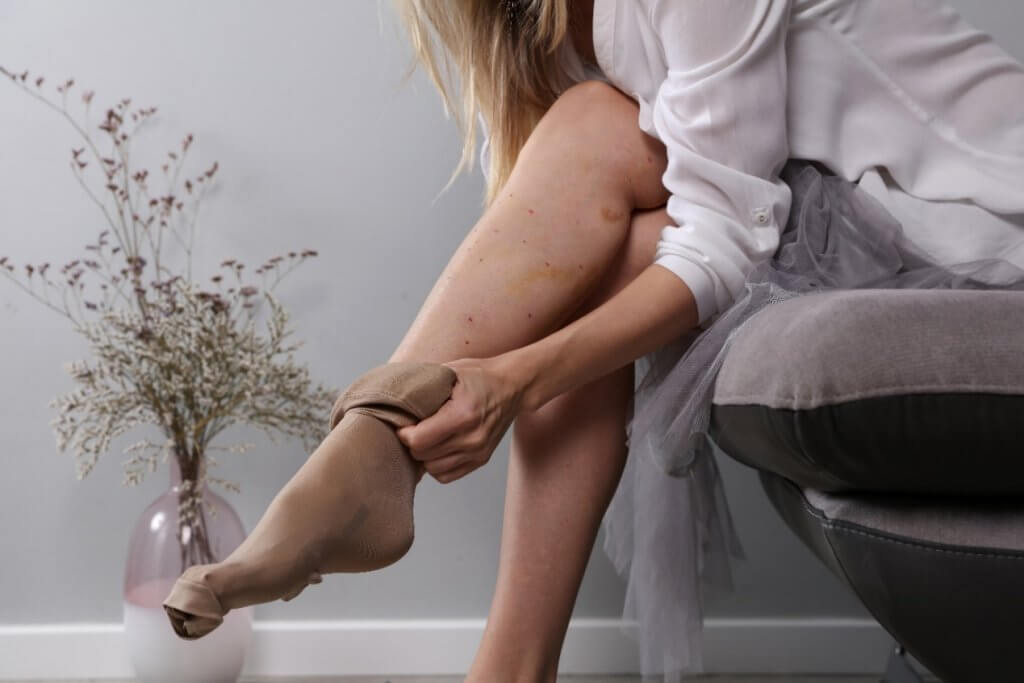 beautiful female legs recovery after laser varicose vein surgery