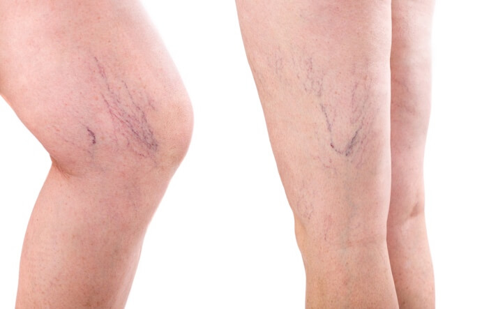 varicose and spider veins on womans legs