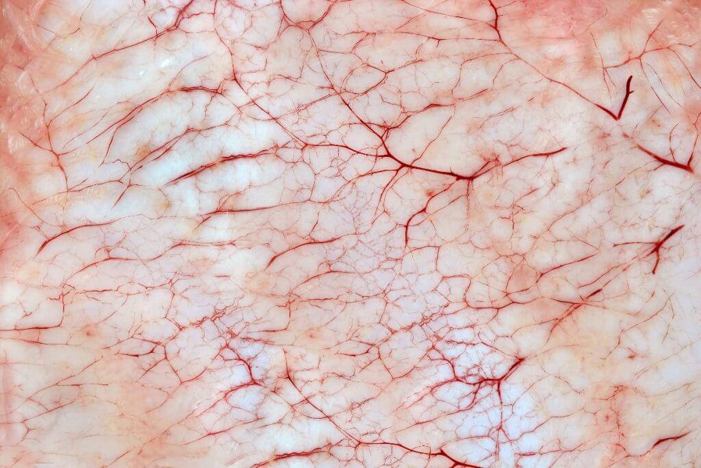 Dark red veins on skin