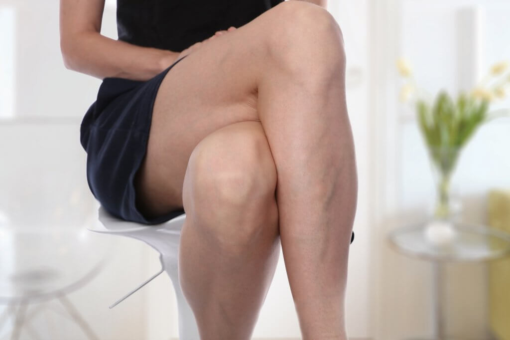 painful varicose and spider veins on female legs