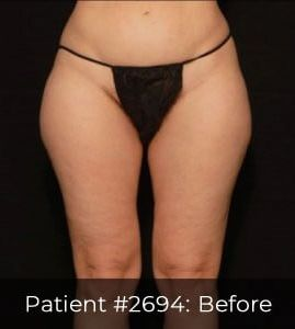 LASER LIPOSUCTION - FEMALE OUTER THIGHS + INNER THIGHS & KNEES, CASE #2694