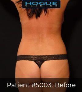 LASER LIPOSUCTION - FEMALE BACK TORSO (BRA FAT, FLANKS, SACRUM), CASE #5003